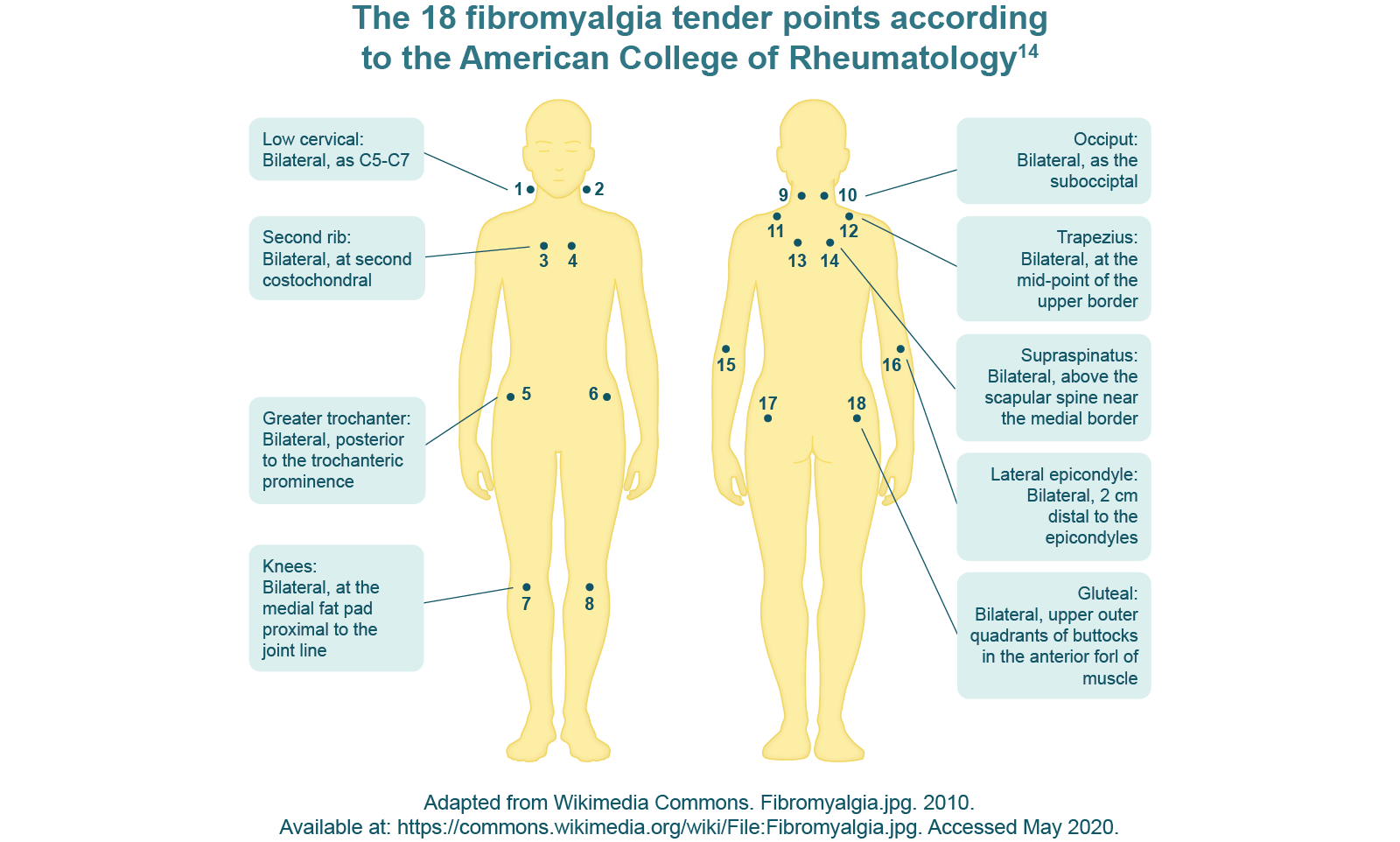 The 18 fibromyalgia tender points according to the american college of rheumatology